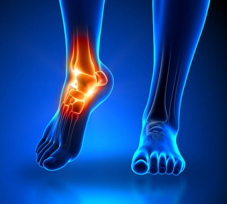 Ankle Instability and Sprains